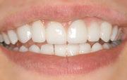 zahnreinigung-zähne
